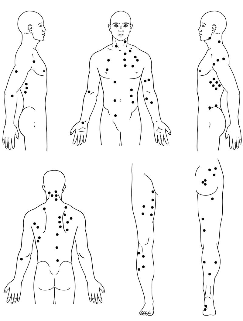 история точки на спине в картинках яичные